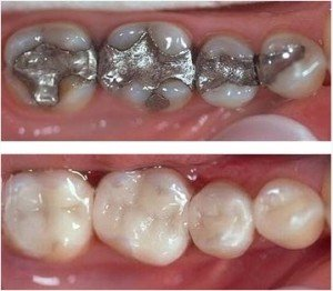 CEREC restorations before and after