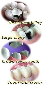 large dental cavity