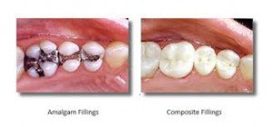 silver and white fillings