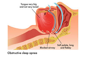 sleep apnea diagram