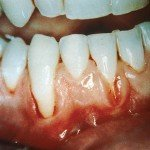 tobacco damages gum