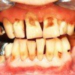 tobaco damages teeth